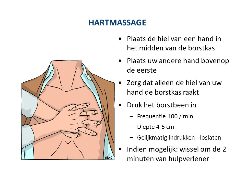 Plaats de hiel van een hand in het midden van de borstkas Plaats uw andere hand bovenop de eerste Zorg dat alleen de hiel van uw hand de borstkas raak