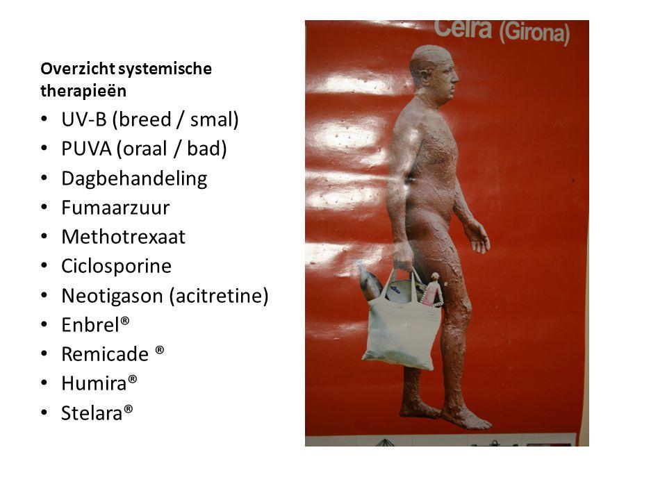 Overzicht systemische therapieën UV-B (breed / smal) PUVA (oraal / bad) Dagbehandeling Fumaarzuur Methotrexaat Ciclosporine Neotigason (acitretine) En