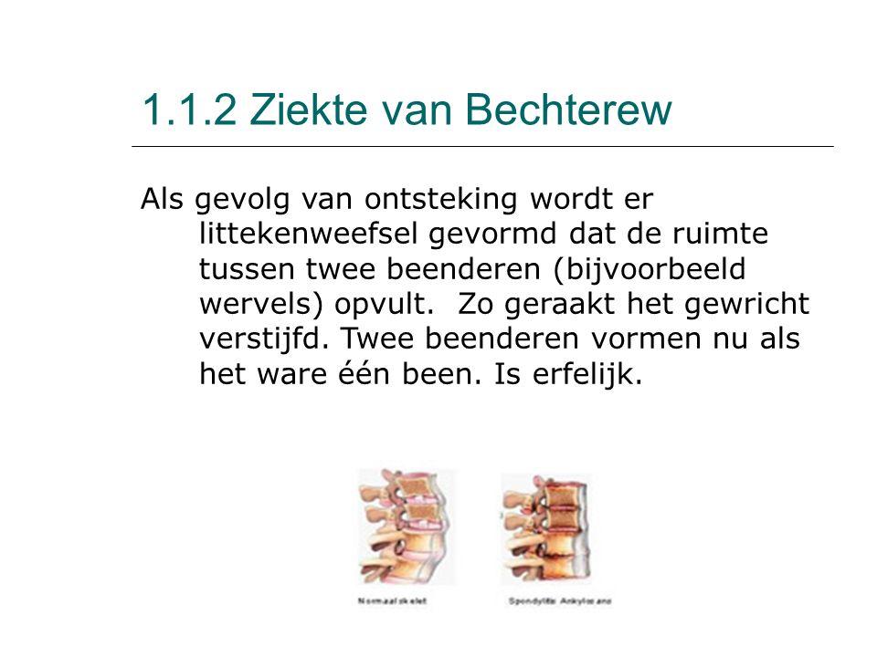 1.1.2 Ziekte van Bechterew Als gevolg van ontsteking wordt er littekenweefsel gevormd dat de ruimte tussen twee beenderen (bijvoorbeeld wervels) opvul