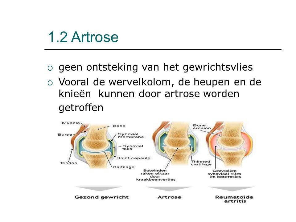 1.2 Artrose  geen ontsteking van het gewrichtsvlies  Vooral de wervelkolom, de heupen en de knieën kunnen door artrose worden getroffen