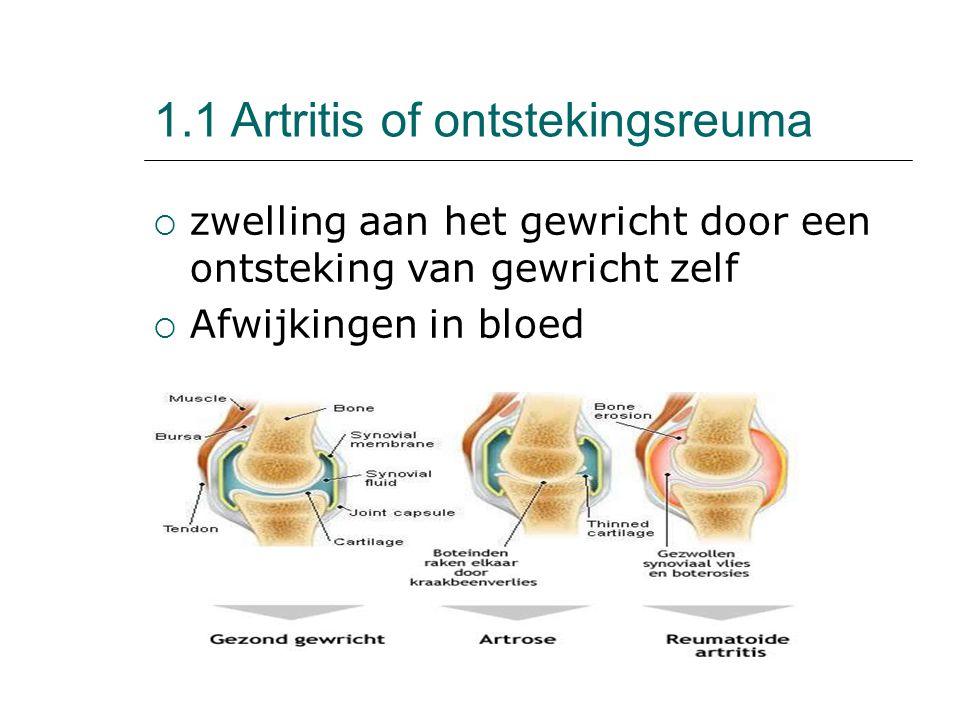 1.1 Artritis of ontstekingsreuma  zwelling aan het gewricht door een ontsteking van gewricht zelf  Afwijkingen in bloed