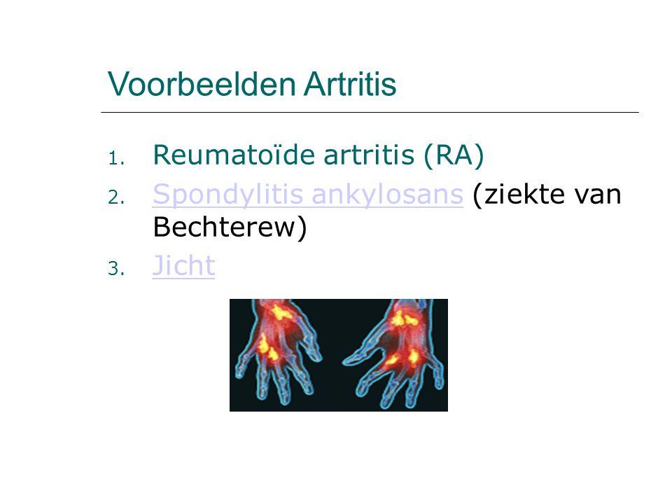 Voorbeelden Artritis 1. Reumatoïde artritis (RA) 2. Spondylitis ankylosans (ziekte van Bechterew) Spondylitis ankylosans 3. Jicht Jicht