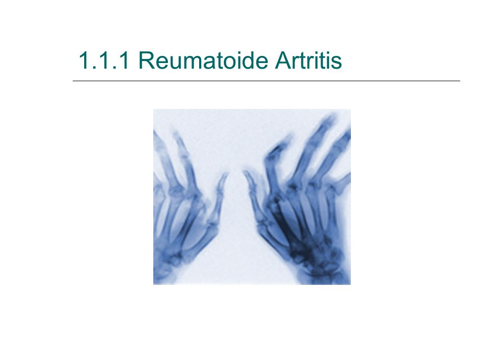 Behandeling Reumatoïde Artritis  Reumatoïde artritis moet behandeld worden met specifieke geneesmiddelen zoals ontstekingsremmers (anti-inflammatoire geneesmiddelen) die de ontsteking en de pijn afremmen.