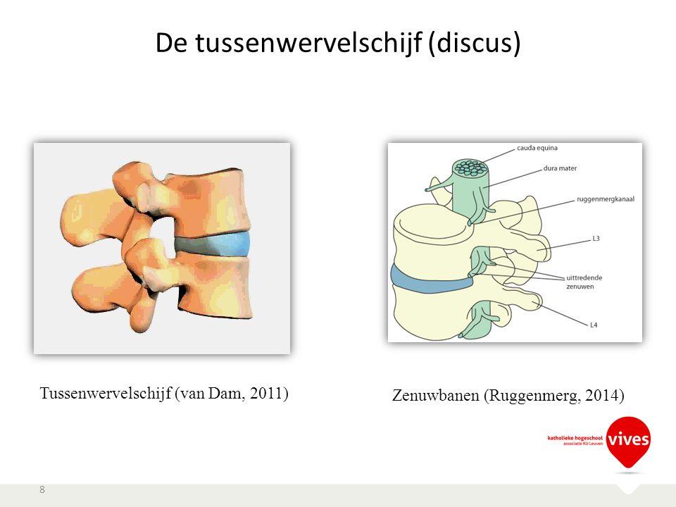 De tussenwervelschijf (discus) 8 Tussenwervelschijf (van Dam, 2011) Zenuwbanen (Ruggenmerg, 2014)