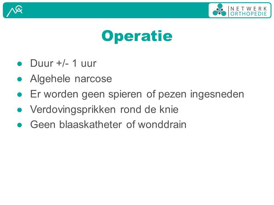 Operatie ● Duur +/- 1 uur ● Algehele narcose ● Er worden geen spieren of pezen ingesneden ● Verdovingsprikken rond de knie ● Geen blaaskatheter of won