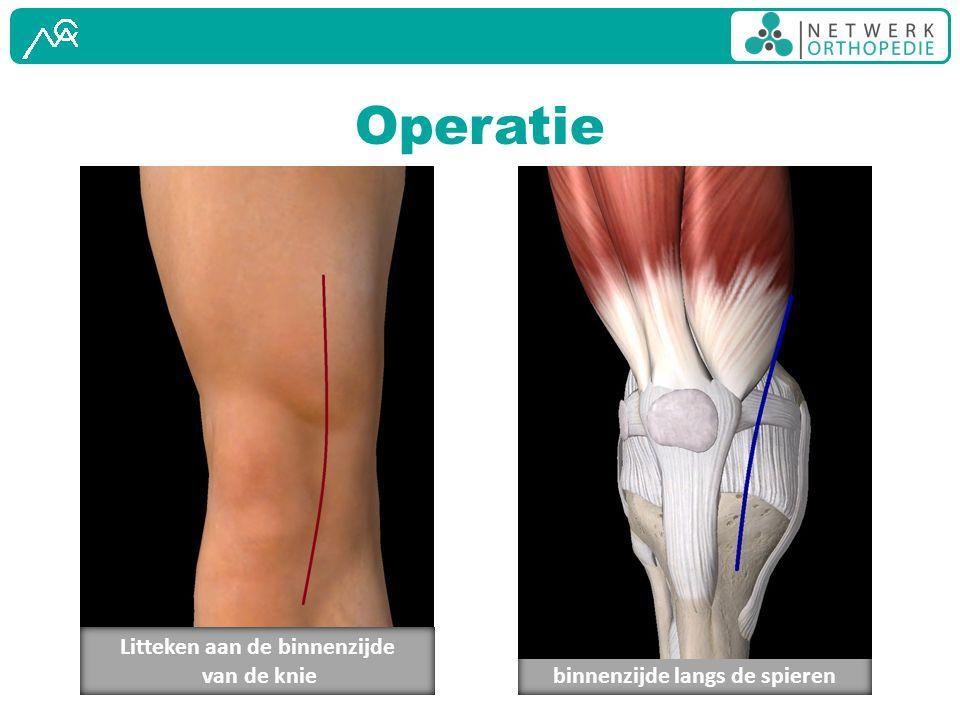 Operatie Openen van het gewrichtskapsel binnenzijde langs de spieren Litteken aan de binnenzijde van de knie