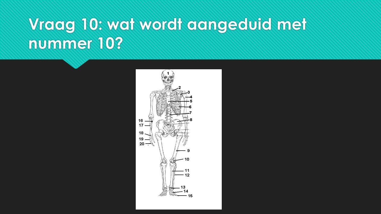Vraag 10: wat wordt aangeduid met nummer 10?