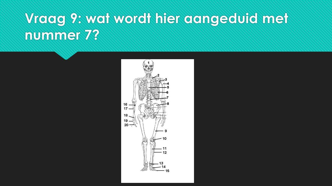 Vraag 9: wat wordt hier aangeduid met nummer 7?