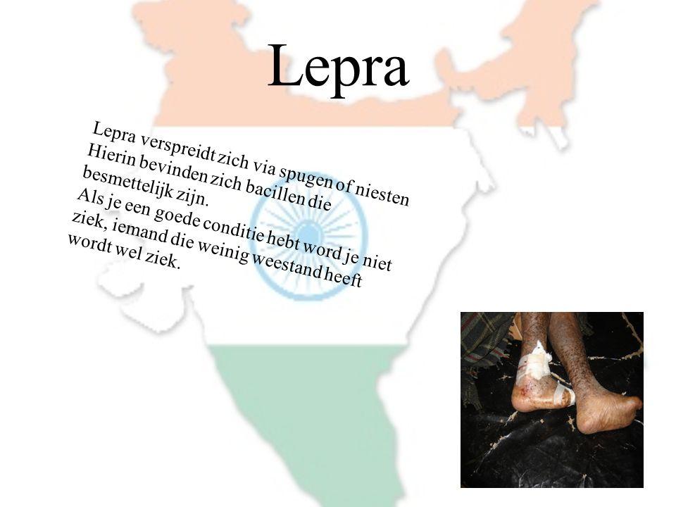 Lepra Lepra verspreidt zich via spugen of niesten Hierin bevinden zich bacillen die besmettelijk zijn. Als je een goede conditie hebt word je niet zie
