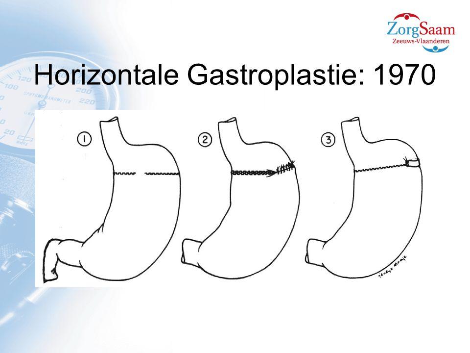 Horizontale Gastroplastie  verminderde kalorie inname  dilatatie proximale maag  dilatatie stoma  hoog falingsratio lange termijn  niet meer toegepast