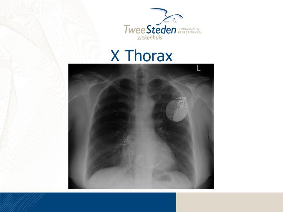 X Thorax