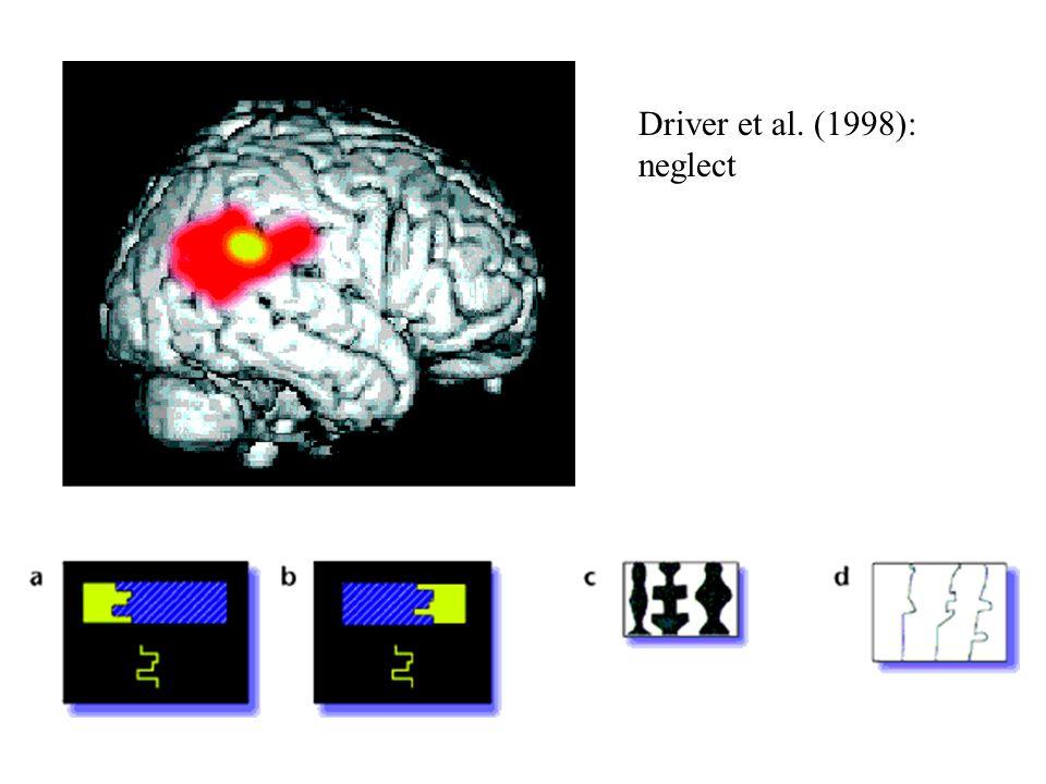 Driver et al. (1998): neglect