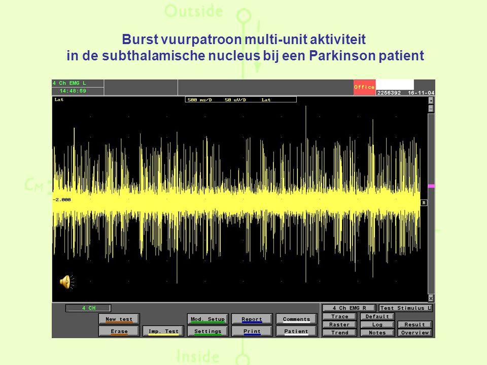 Burst vuurpatroon multi-unit aktiviteit in de subthalamische nucleus bij een Parkinson patient