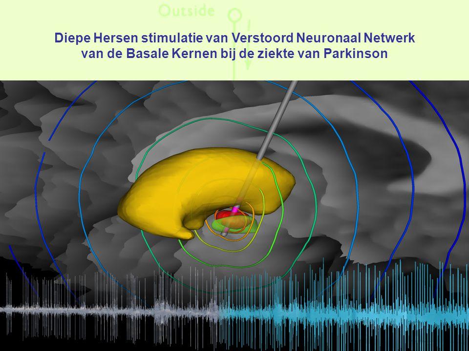 Diepe Hersen stimulatie van Verstoord Neuronaal Netwerk van de Basale Kernen bij de ziekte van Parkinson
