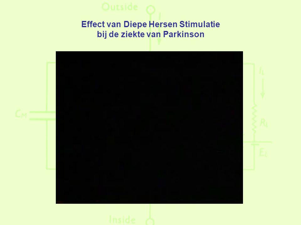 Effect van Diepe Hersen Stimulatie bij de ziekte van Parkinson