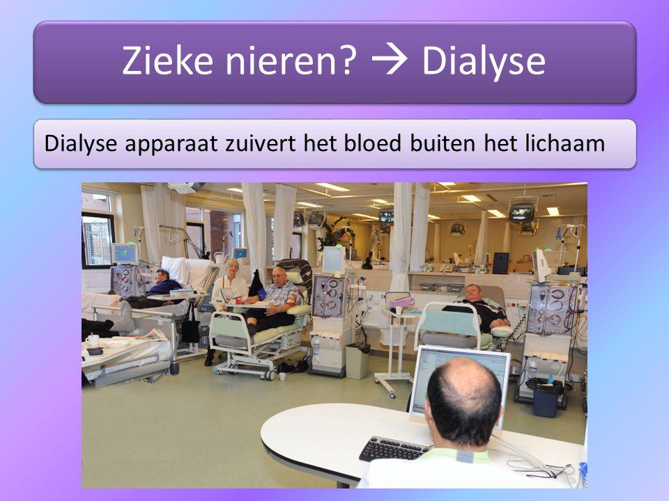 Zieke nieren?  Dialyse Dialyse apparaat zuivert het bloed buiten het lichaam