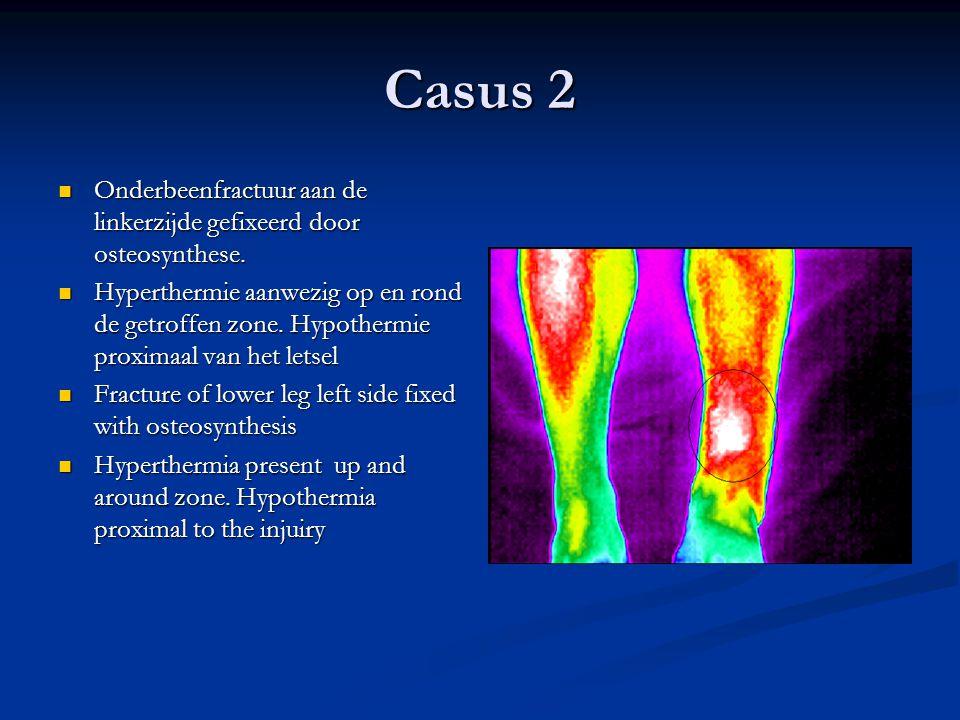 Casus 2 Onderbeenfractuur aan de linkerzijde gefixeerd door osteosynthese. Onderbeenfractuur aan de linkerzijde gefixeerd door osteosynthese. Hyperthe