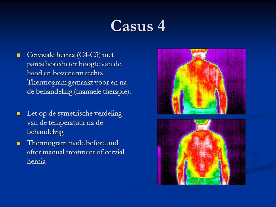 Casus 4 Cervicale hernia (C4-C5) met paresthesieën ter hoogte van de hand en bovenarm rechts. Thermogram gemaakt voor en na de behandeling (manuele th
