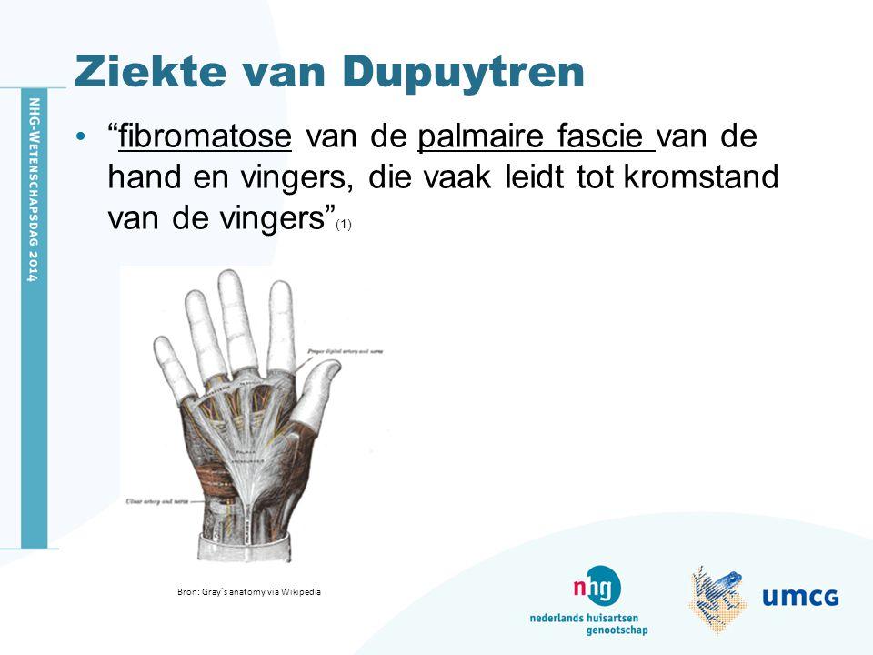 """Ziekte van Dupuytren """"fibromatose van de palmaire fascie van de hand en vingers, die vaak leidt tot kromstand van de vingers"""" (1) Bron: Gray`s anatomy"""