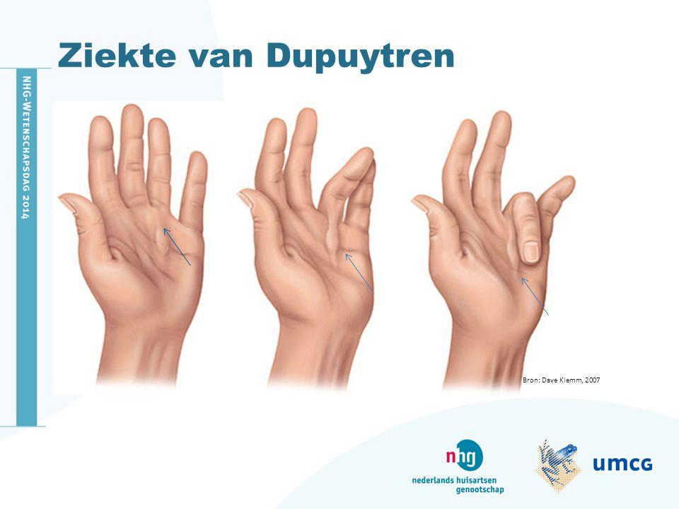 Ziekte van Dupuyten Risicofactoren Prevalentie Incidentie Oorzaak