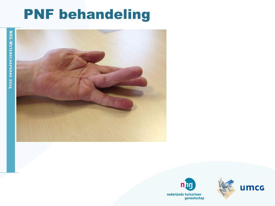 PNF behandeling