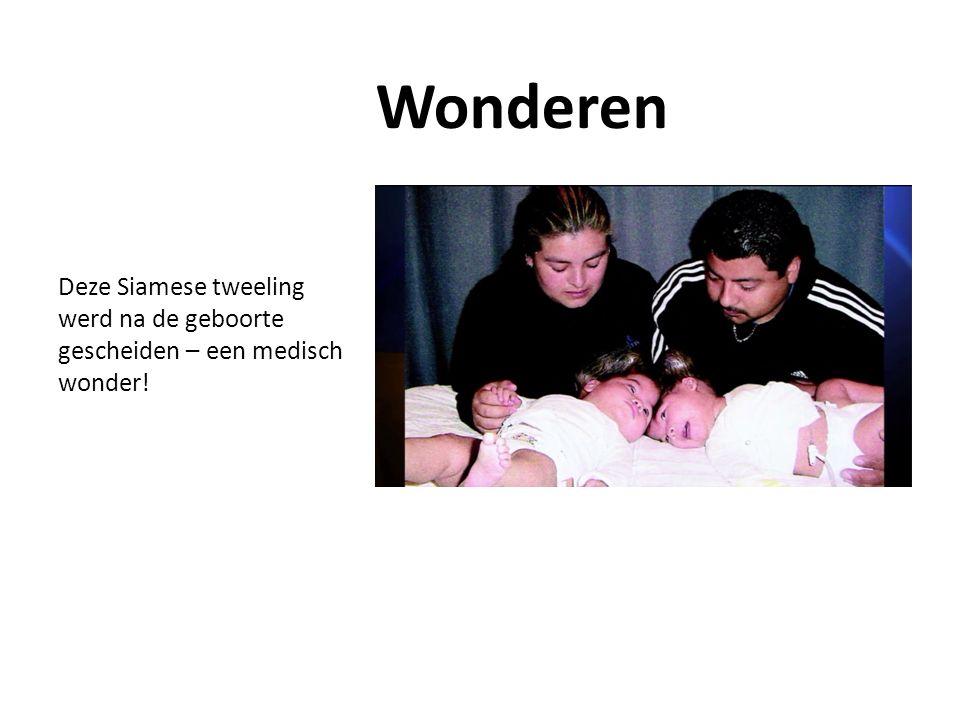 Deze Siamese tweeling werd na de geboorte gescheiden – een medisch wonder! Wonderen