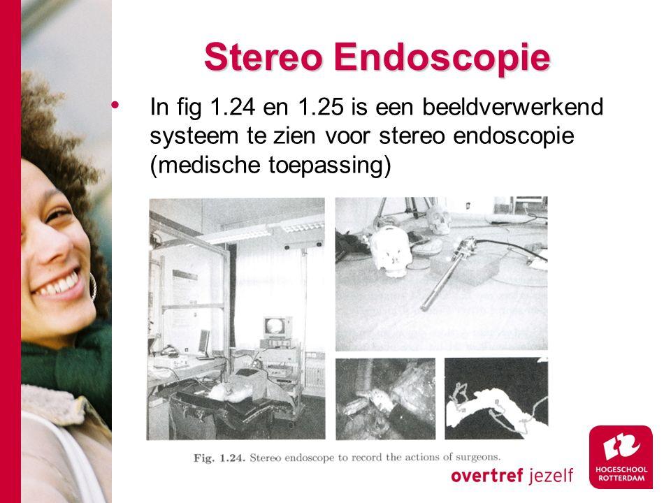 # Stereo Endoscopie Stereo Endoscopie In fig 1.24 en 1.25 is een beeldverwerkend systeem te zien voor stereo endoscopie (medische toepassing)