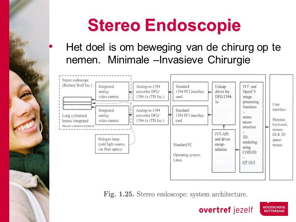 # Stereo Endoscopie Het doel is om beweging van de chirurg op te nemen.