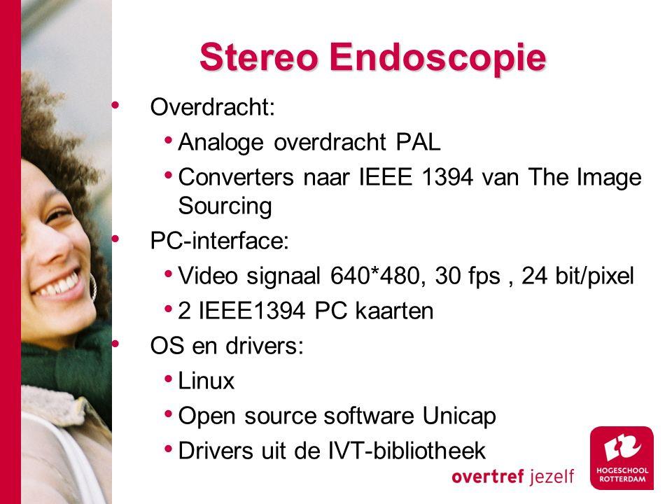 # Stereo Endoscopie Overdracht: Analoge overdracht PAL Converters naar IEEE 1394 van The Image Sourcing PC-interface: Video signaal 640*480, 30 fps, 2