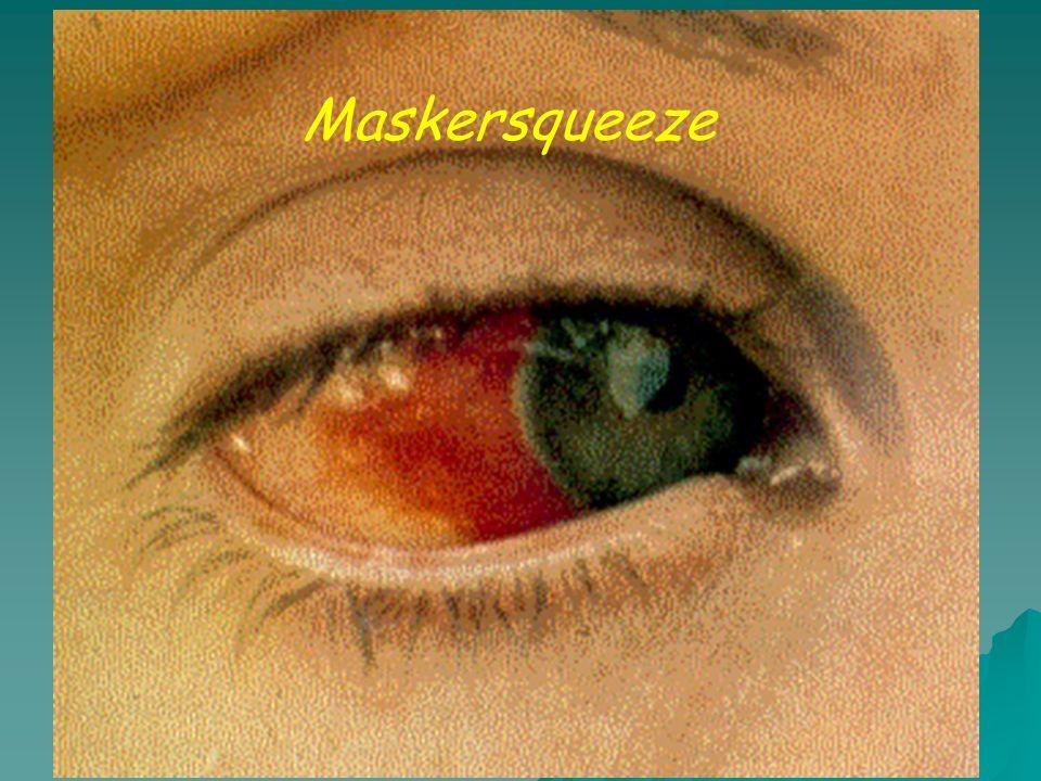 Maskersqueeze