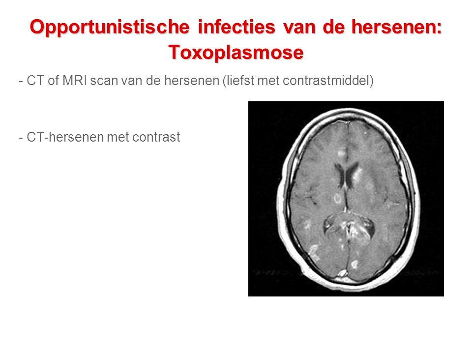 Opportunistische infecties van de hersenen: Toxoplasmose - CT of MRI scan van de hersenen (liefst met contrastmiddel) - CT-hersenen met contrast