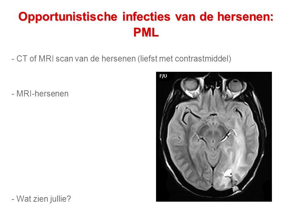 Opportunistische infecties van de hersenen: PML - CT of MRI scan van de hersenen (liefst met contrastmiddel) - MRI-hersenen - Wat zien jullie?