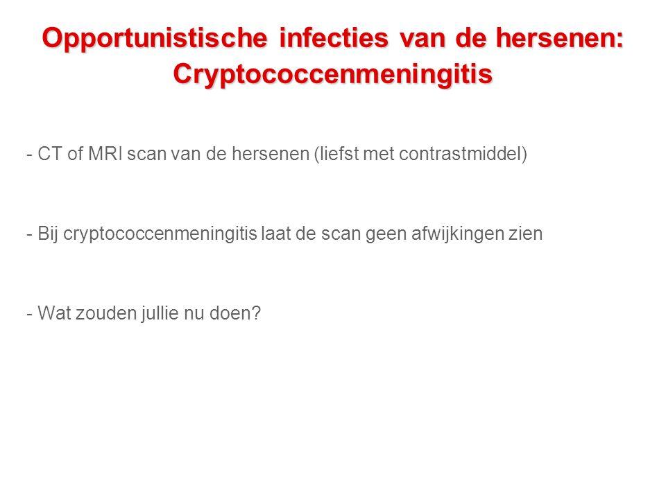 Opportunistische infecties van de hersenen: Cryptococcenmeningitis - CT of MRI scan van de hersenen (liefst met contrastmiddel) - Bij cryptococcenmeningitis laat de scan geen afwijkingen zien - Wat zouden jullie nu doen?