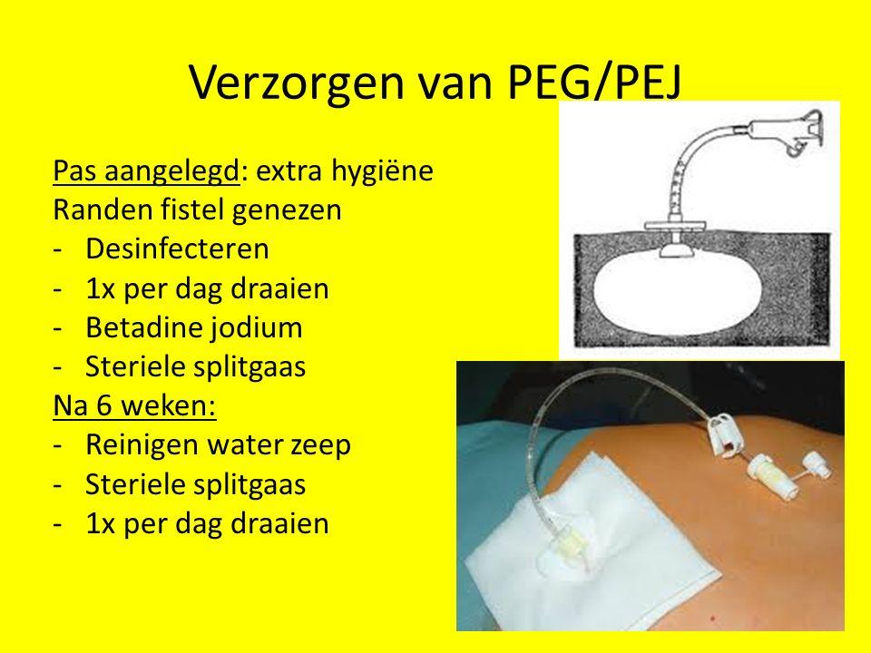 Verzorgen van PEG/PEJ Pas aangelegd: extra hygiëne Randen fistel genezen -Desinfecteren -1x per dag draaien -Betadine jodium -Steriele splitgaas Na 6