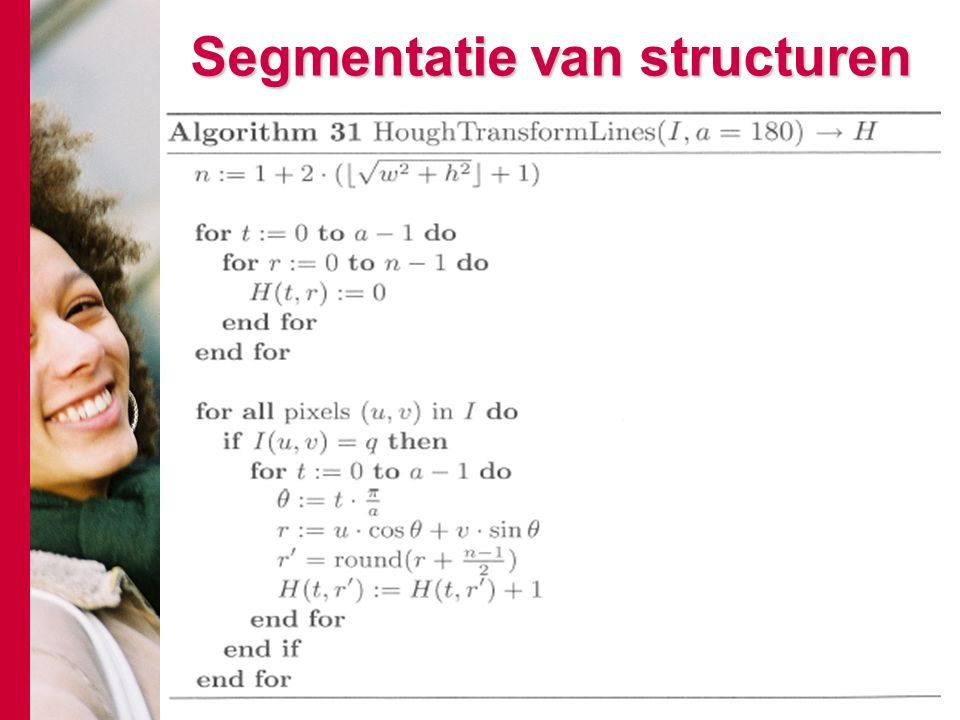 # Segmentatie van structuren