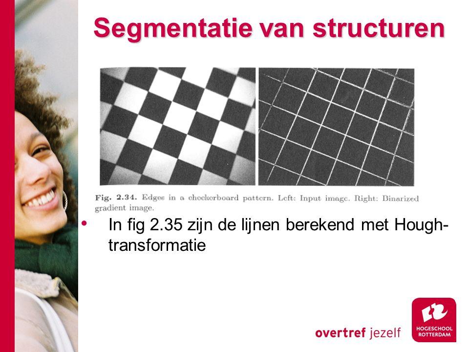 # Segmentatie van structuren In fig 2.35 zijn de lijnen berekend met Hough- transformatie