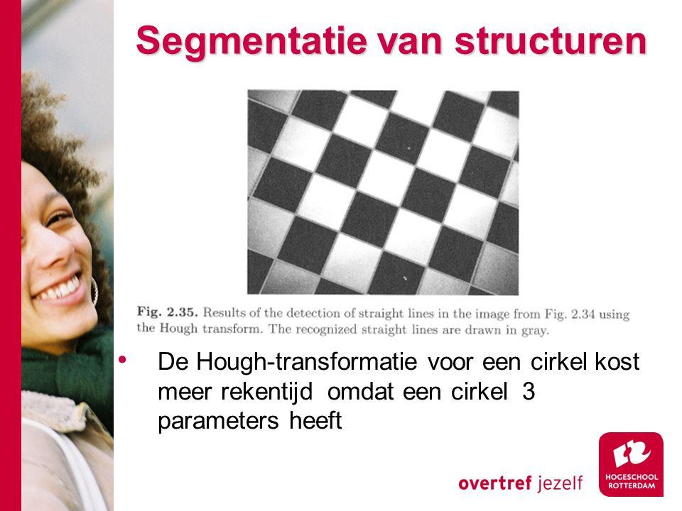# Segmentatie van structuren De Hough-transformatie voor een cirkel kost meer rekentijd omdat een cirkel 3 parameters heeft
