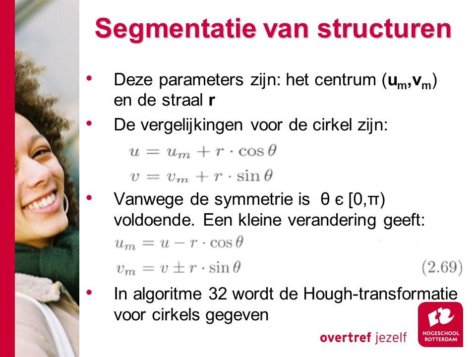 # Segmentatie van structuren Deze parameters zijn: het centrum (u m,v m ) en de straal r De vergelijkingen voor de cirkel zijn: Vanwege de symmetrie is θ є [0,π) voldoende.
