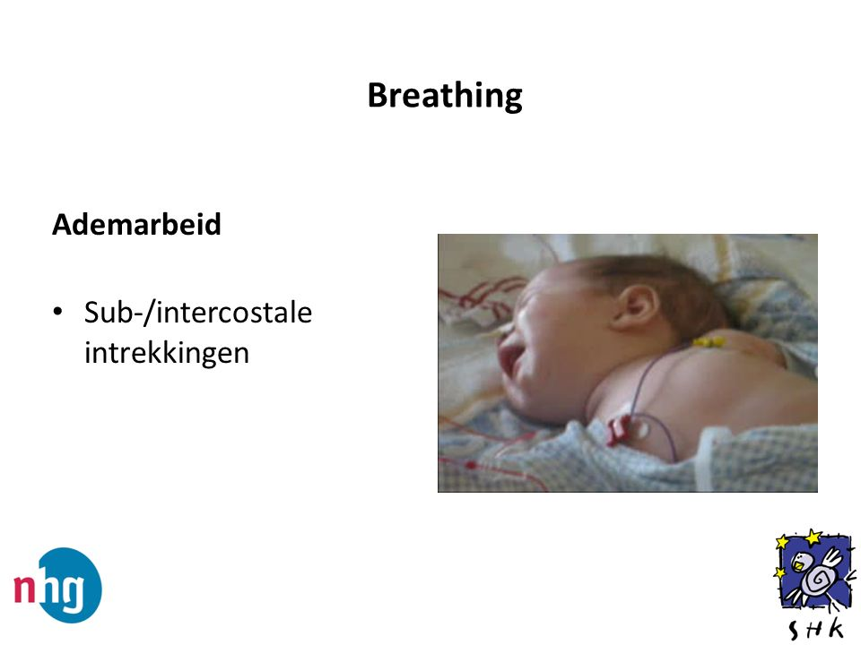 Ademarbeid Sub-/intercostale intrekkingen Breathing