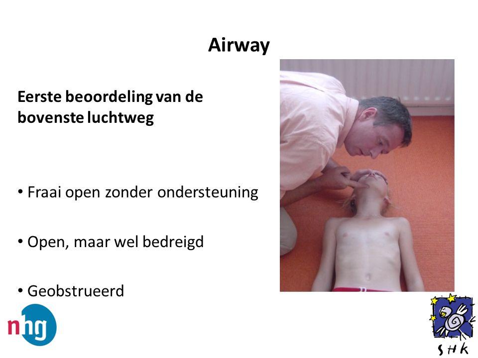 Airway Eerste beoordeling van de bovenste luchtweg Fraai open zonder ondersteuning Open, maar wel bedreigd Geobstrueerd