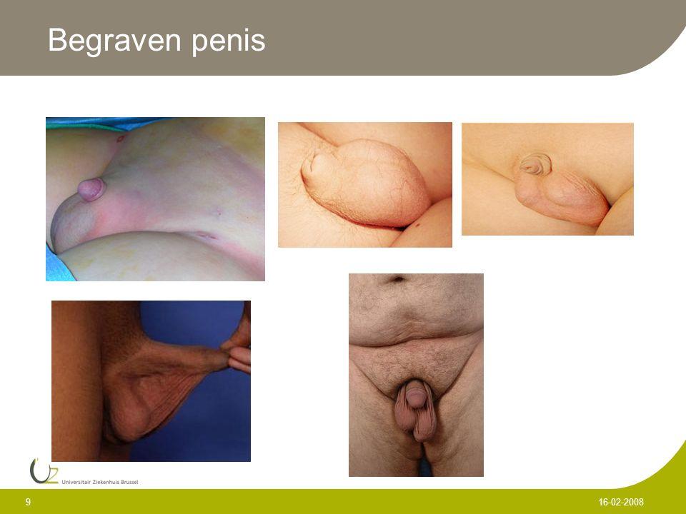 Begraven penis 9 16-02-2008