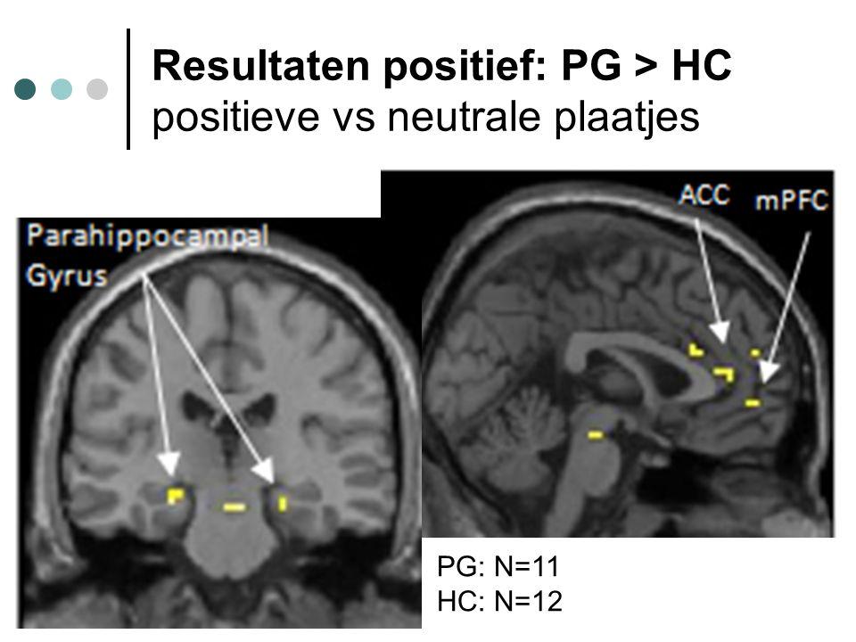 Resultaten positief: PG > HC positieve vs neutrale plaatjes PG: N=11 HC: N=12