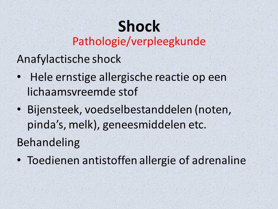 Shock Pathologie/verpleegkunde Obstructieve shock Obstructie van de circulatie (bijv.