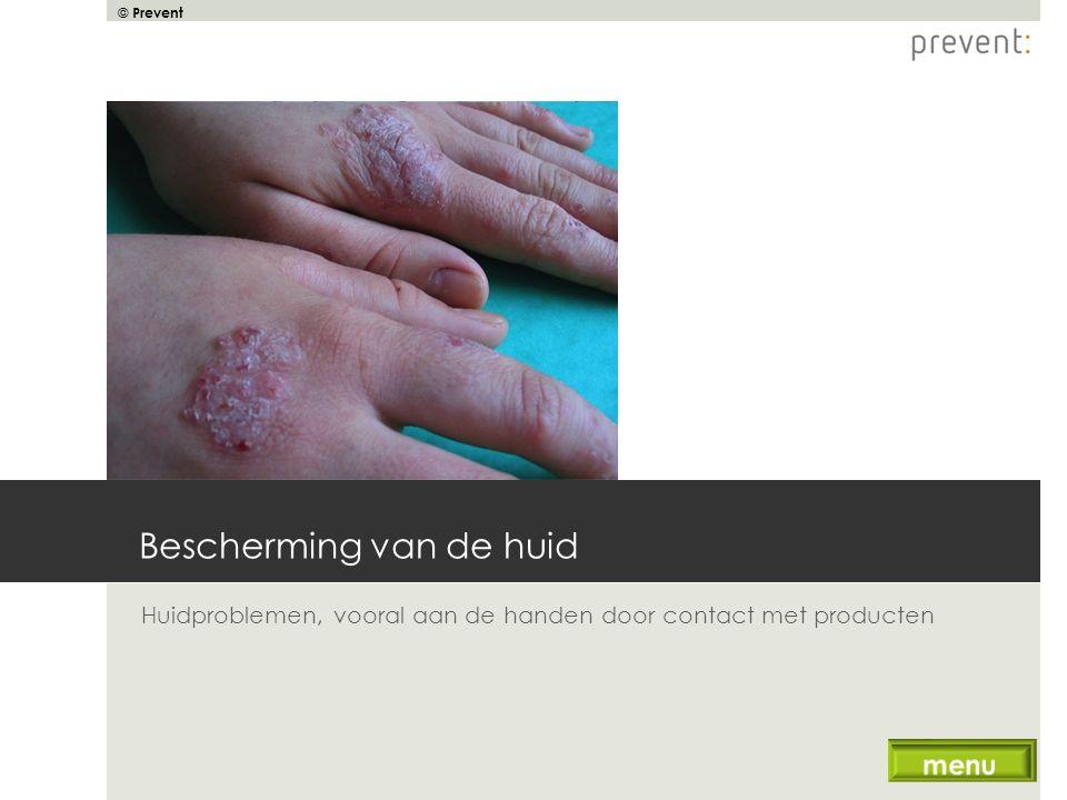 © Prevent Bescherming van de huid Huidproblemen, vooral aan de handen door contact met producten