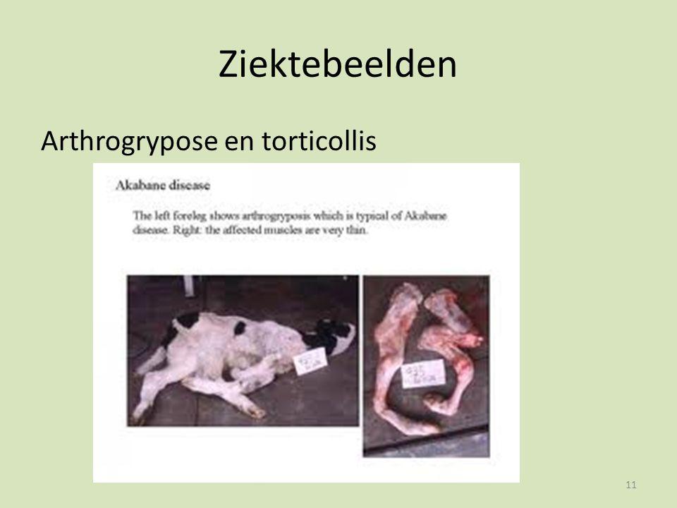 Ziektebeelden Arthrogrypose en torticollis 11