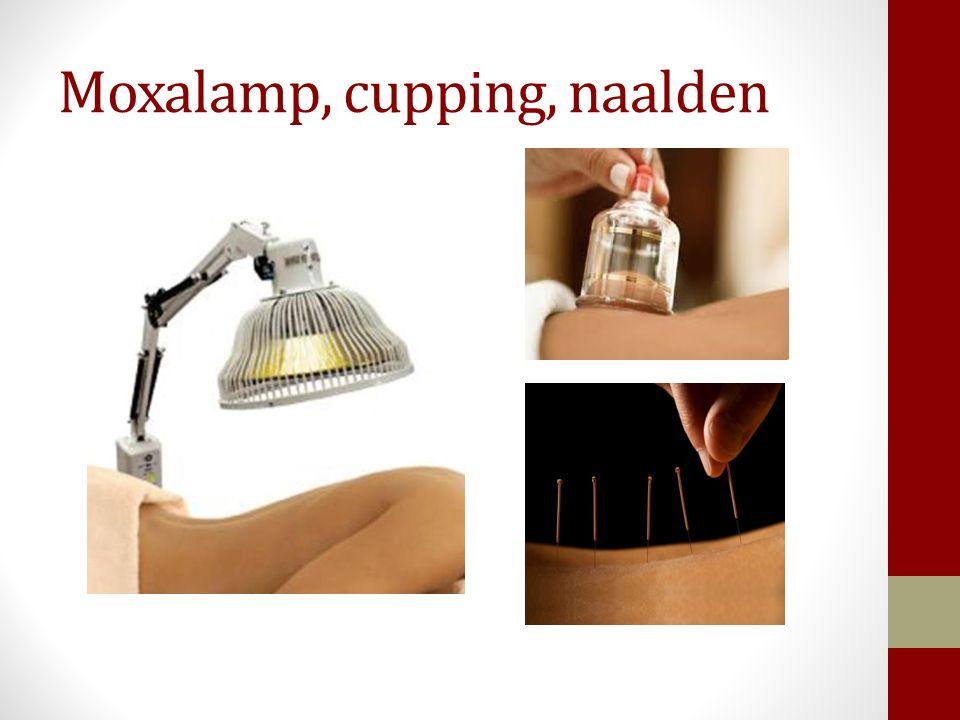 Moxalamp, cupping, naalden