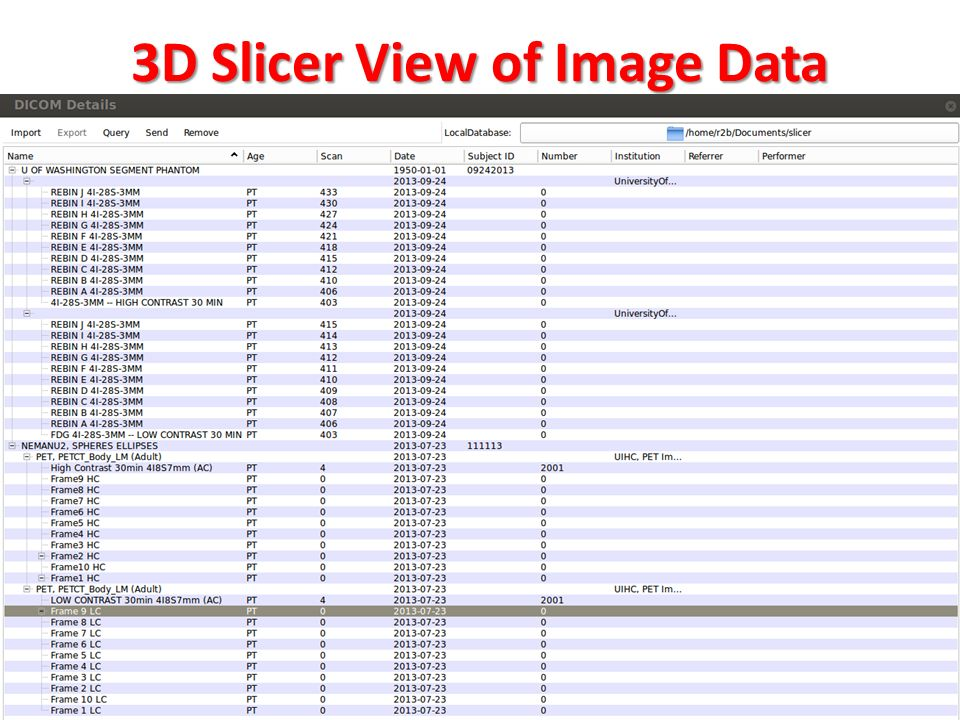 3D Slicer View of Image Data 6