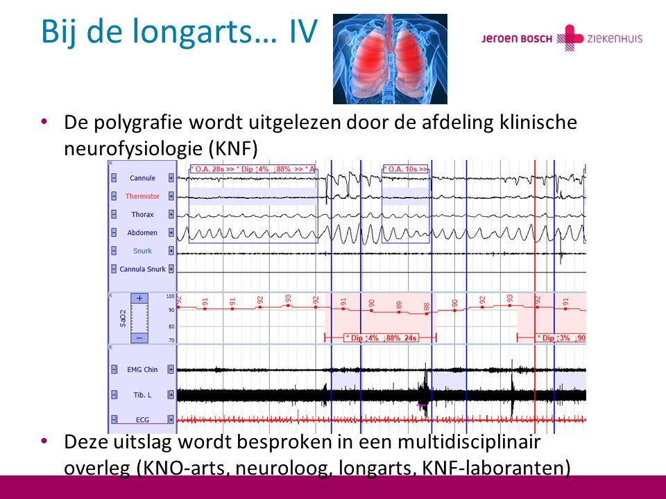 Bij de longarts… IV De polygrafie wordt uitgelezen door de afdeling klinische neurofysiologie (KNF) Deze uitslag wordt besproken in een multidisciplinair overleg (KNO-arts, neuroloog, longarts, KNF-laboranten)