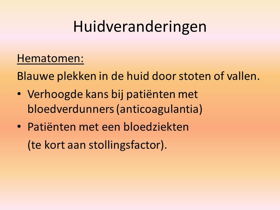 Huidveranderingen Hematomen: Blauwe plekken in de huid door stoten of vallen. Verhoogde kans bij patiënten met bloedverdunners (anticoagulantia) Patië