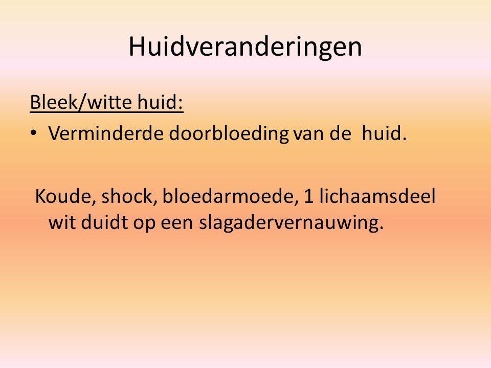 Huidveranderingen Bleek/witte huid: Verminderde doorbloeding van de huid. Koude, shock, bloedarmoede, 1 lichaamsdeel wit duidt op een slagadervernauwi
